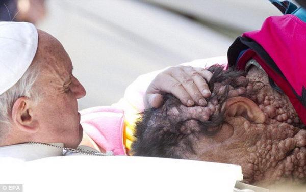 Римский папа Франциск благословляет прокажённого